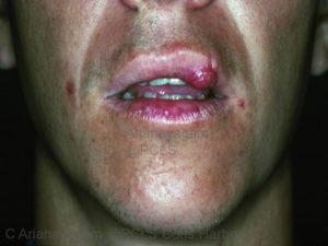 treatment lip injury