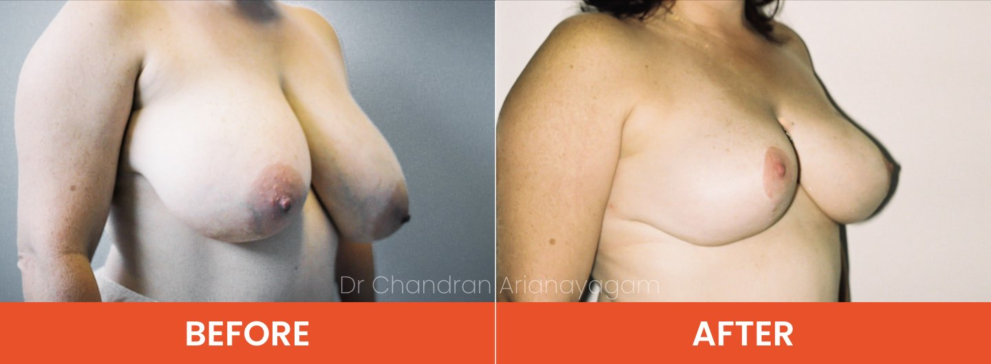 Breast Reduction coffs harbour