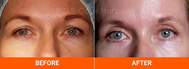 blepharoplasty eyelid surgery