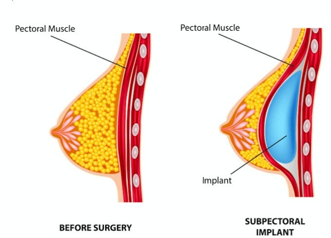subpectoral placement of breast implants