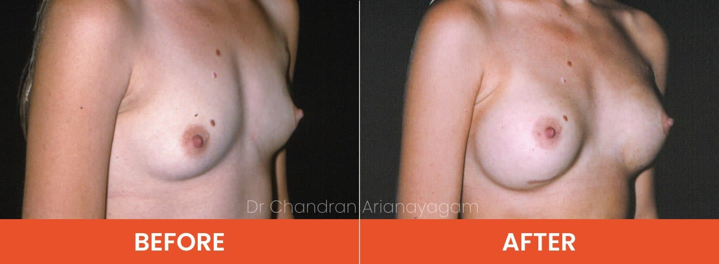 breast enlargement surgery cost
