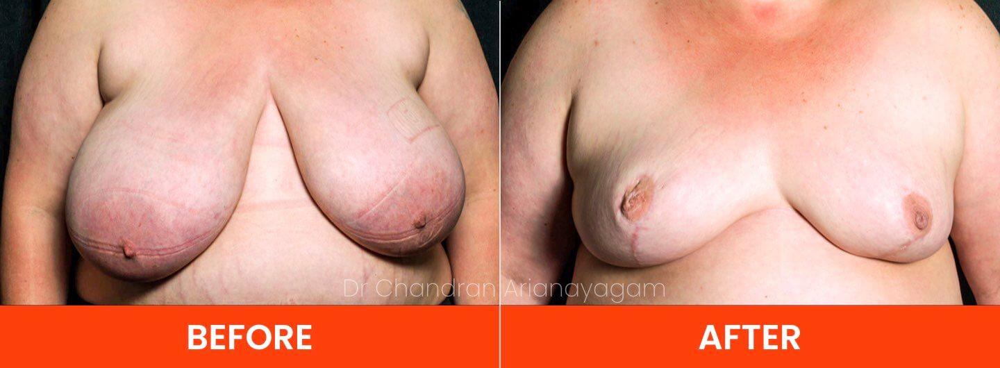 breast reduction surgeon