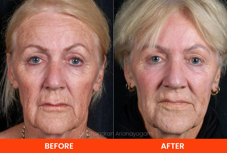 laser treatment for skin cancer