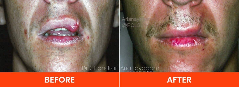 Lip Injuries