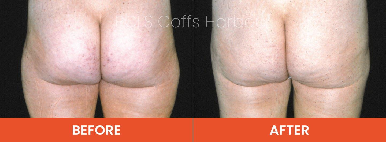 Liposuction grafton