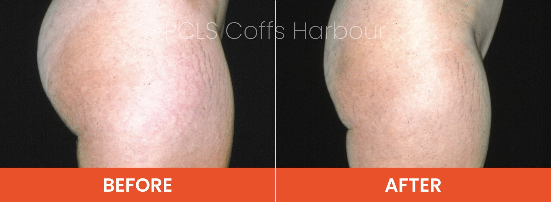 liposuction armidale