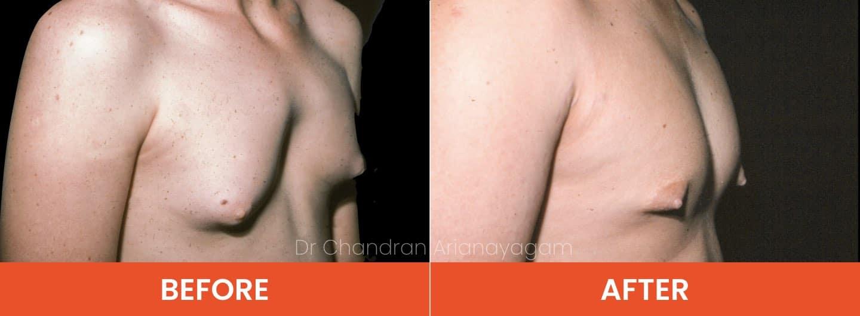 man boob surgery cost