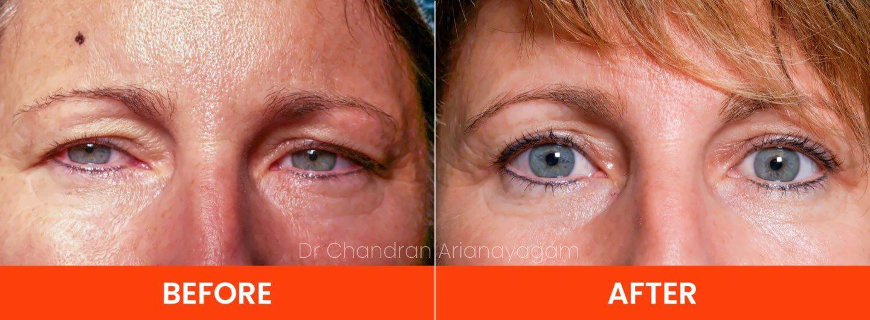 Droopy Upper Eyelids Bpeharoptosis