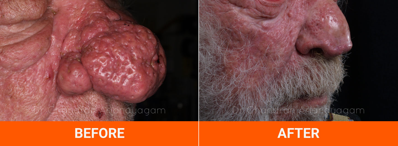 Rosacea And Rhinophyma Treatment