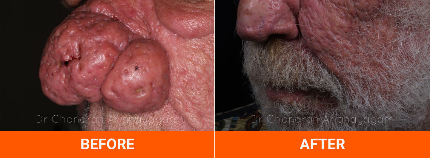 Rosacea And Rhinophyma Treatment
