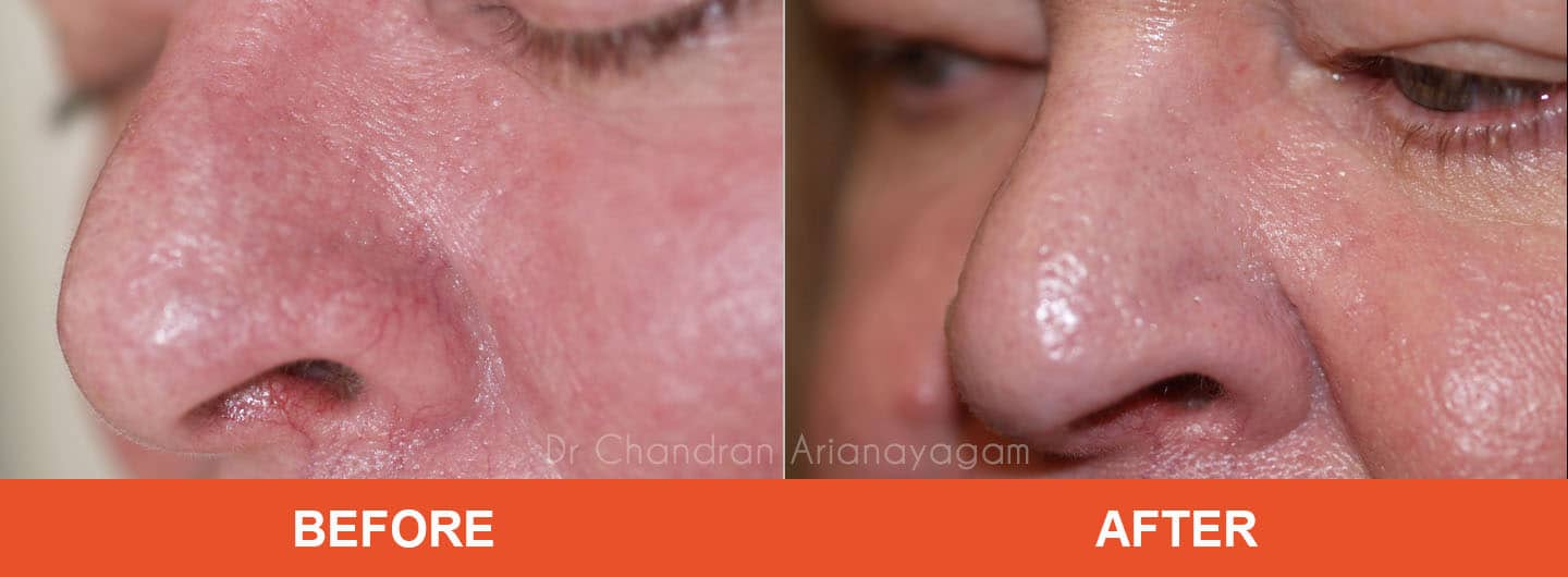 rhinophyma treatment armidale