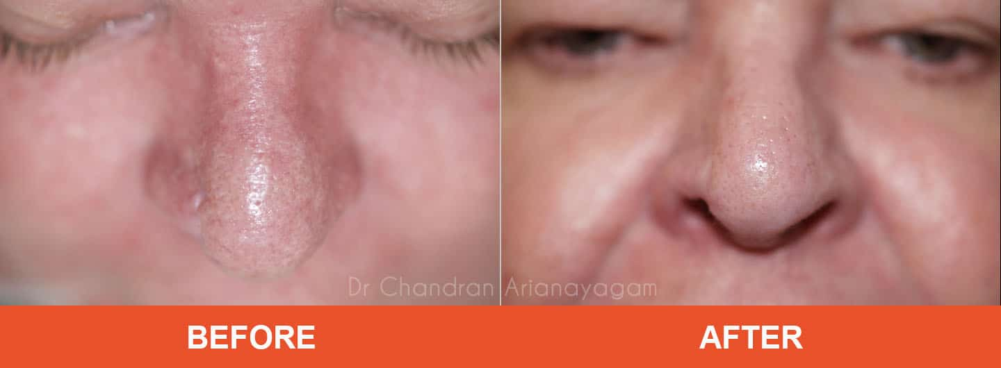 rhinophyma treatment coffs harbour