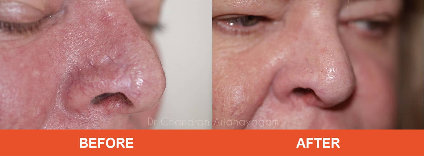rhinophyma treatment tamworth