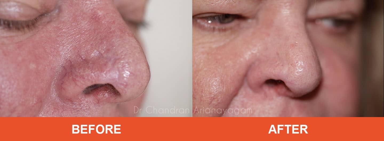 rhinophyma treatment tamworth
