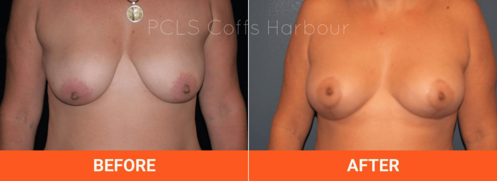 Breast Lift and Augmentation with Implants