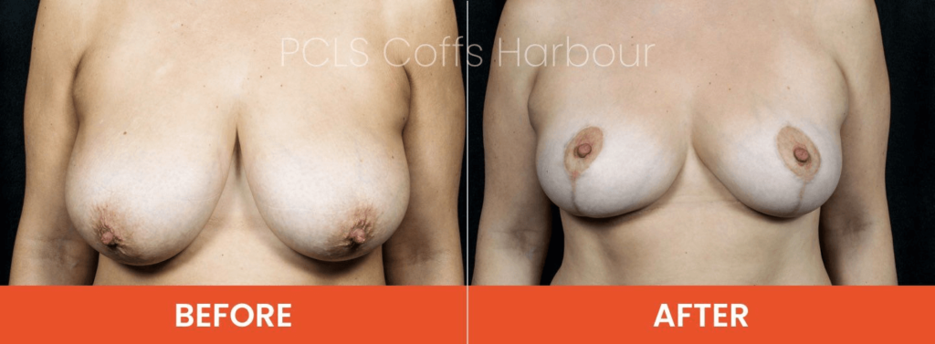 breast reduction with implants or without