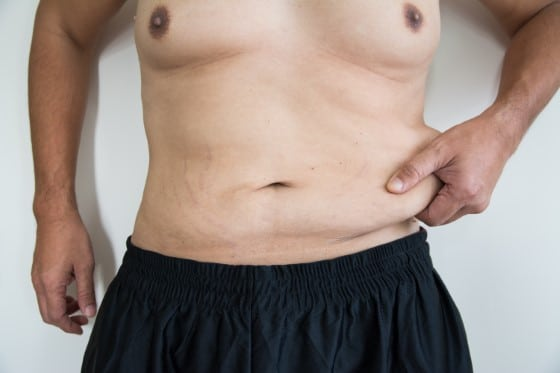 male tummy tuck coffs harbour