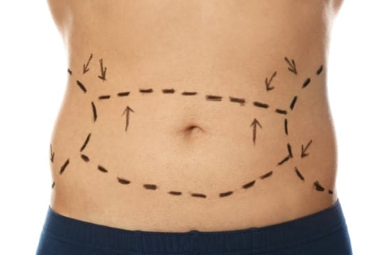 tummy tuck for men coffs harbour