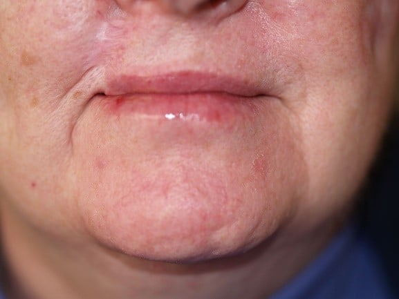 Skin Cancer of the Lip