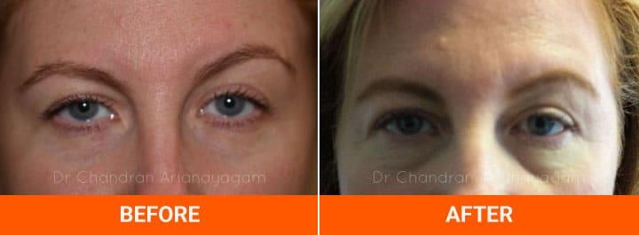 Eyebrow Asymmetry