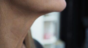 Nonsurgical skin tightening