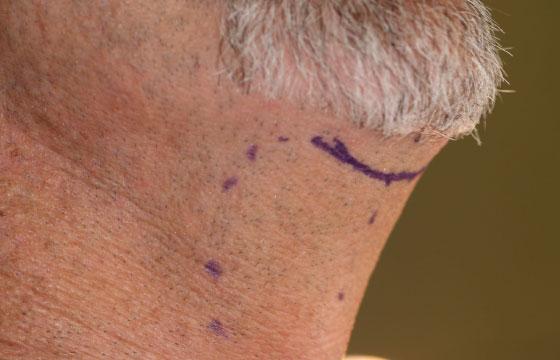 turkey neck Submental scar