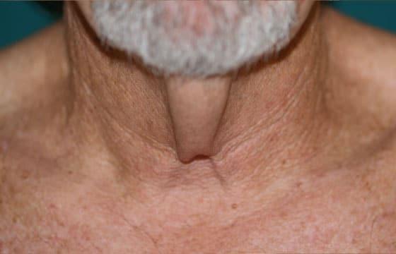 turkey neck problem